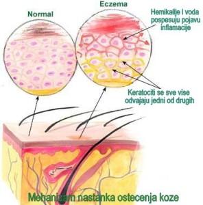 mehanizam nastanka ostecenja kod ekcema